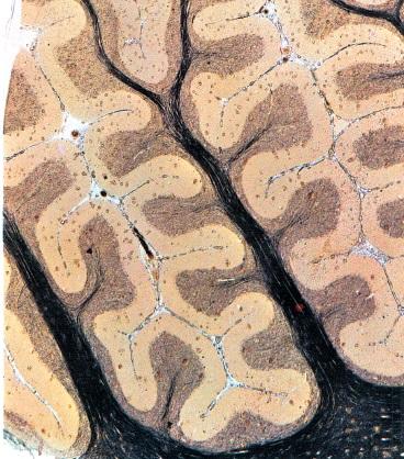 visão-microscópica-do-cerebelo-sistema-nervoso-humano