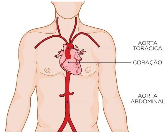 artéria-aorta